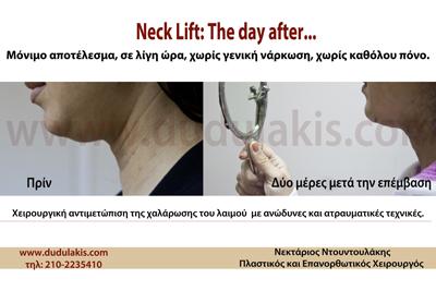Neck – lift