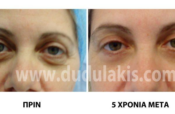 2φαροπλprin-meta