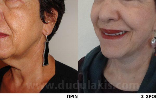 face-lift1-dudulakis