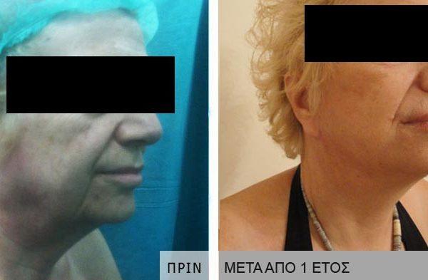 ΛΙΦΤΙΝΓK FACE LIFTING ΝΤΟΥΝΤΟΥΛΑΚΗΣ ΝΕΚΤΑΡΙΟΣ 05