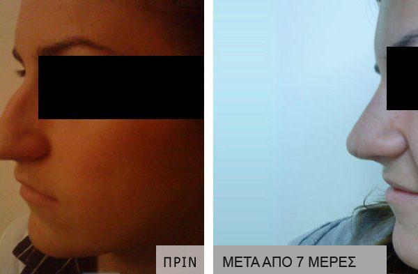 rinoplastiki-prin_meta_02