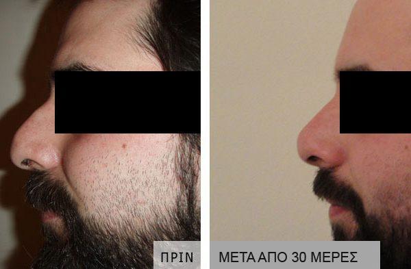 rinoplastiki-prin_meta_04