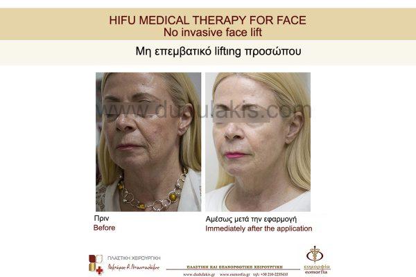 HIFU FOR FACE DUDULAKIS  (12)
