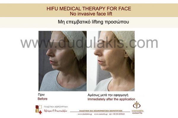 HIFU FOR FACE DUDULAKIS (17)