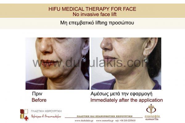 HIFU FOR FACE DUDULAKIS  (3)