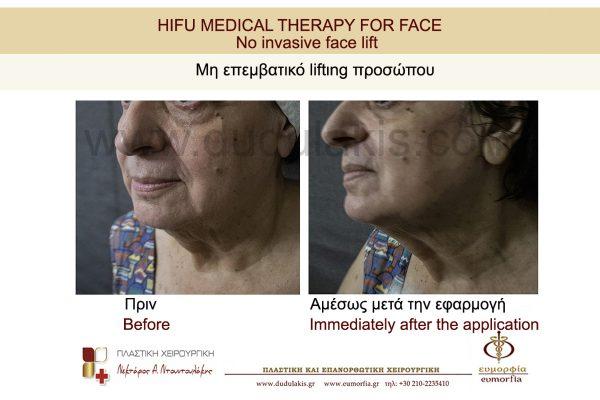 HIFU FOR FACE DUDULAKIS  (4)
