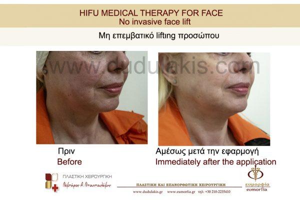 HIFU FOR FACE DUDULAKIS  (5)