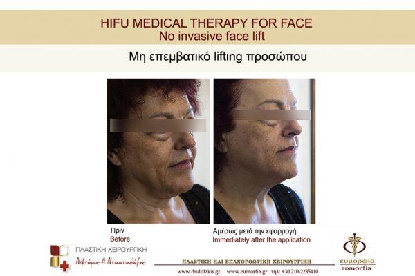 HIFU FOR FACE DUDULAKIS  (8)